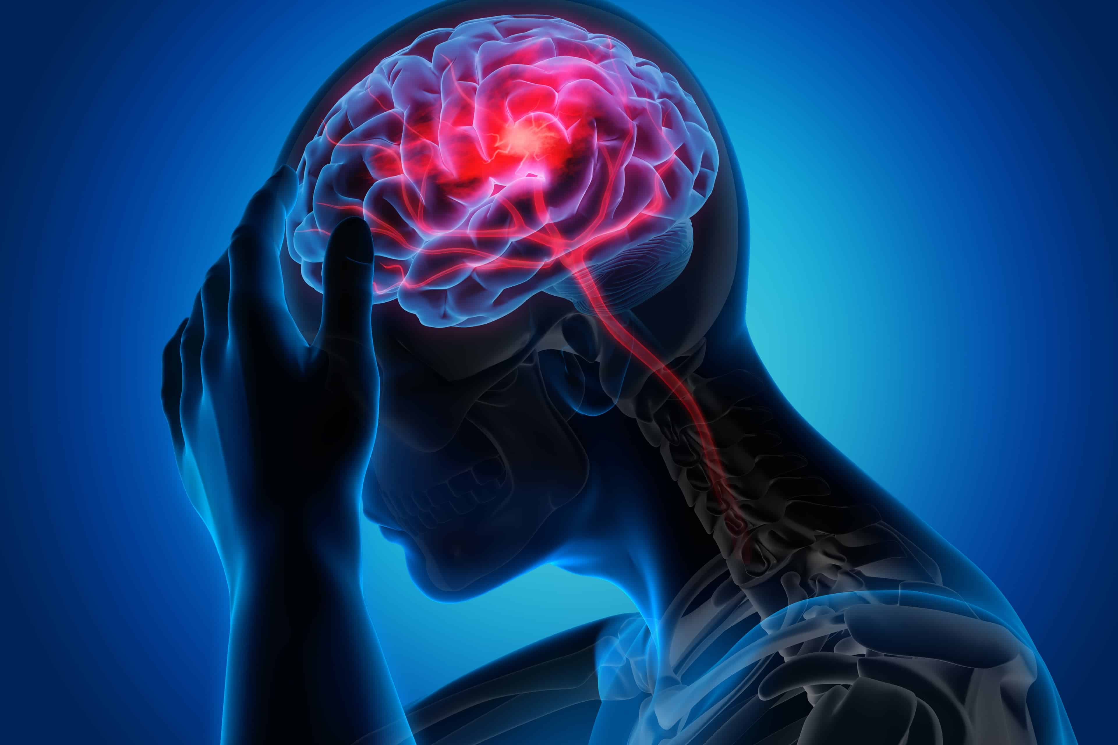 Profilaktyka wtórna udaru mózgu